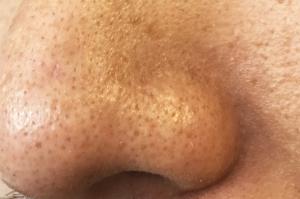 イチゴ鼻ビフォー